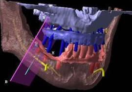 CTによる画像解析