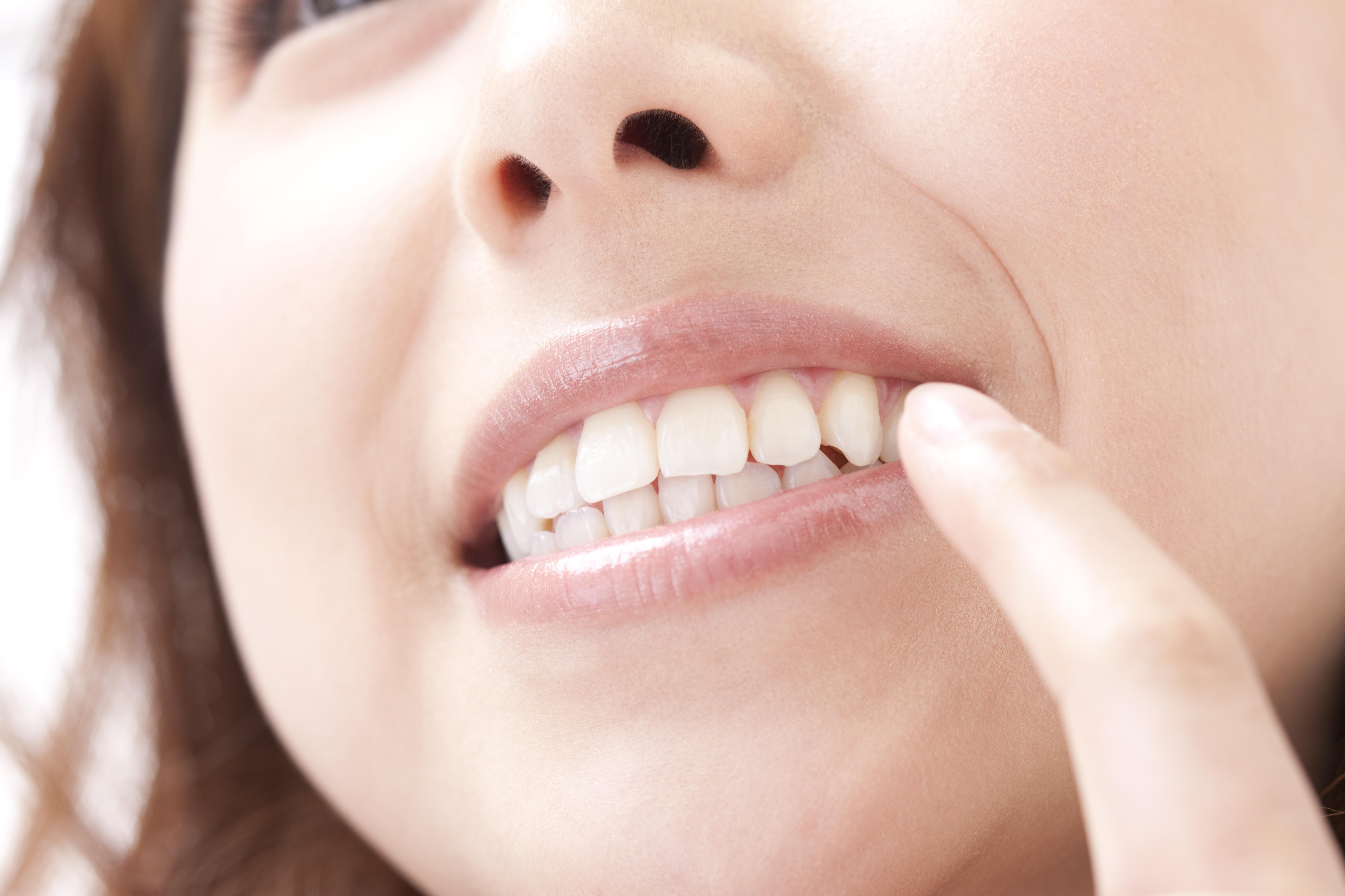 白い歯を手に入れるセラミック治療