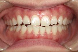歯肉(歯ぐき)のホワイトニング(ピーリング)について